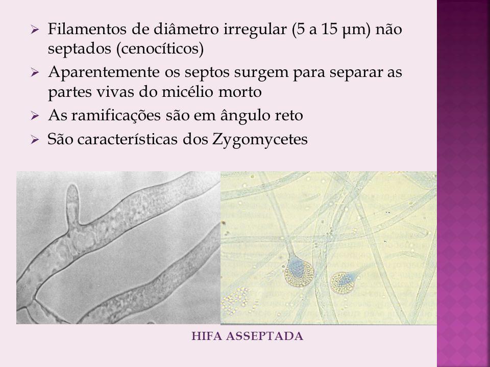 Filamentos de diâmetro irregular (5 a 15 μm) não septados (cenocíticos) Aparentemente os septos surgem para separar as partes vivas do micélio morto As ramificações são em ângulo reto São características dos Zygomycetes HIFA ASSEPTADA