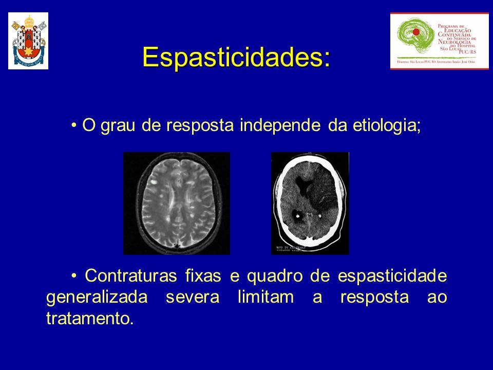 Espasticidades: O grau de resposta independe da etiologia; Contraturas fixas e quadro de espasticidade generalizada severa limitam a resposta ao trata