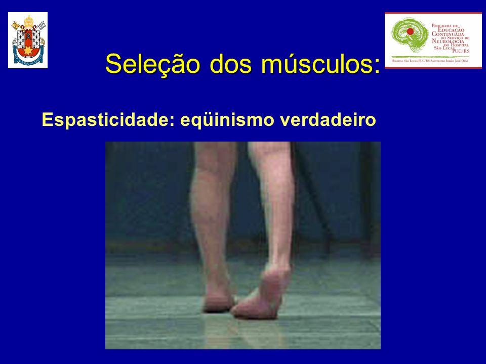 Espasticidade: eqüinismo verdadeiro Seleção dos músculos: