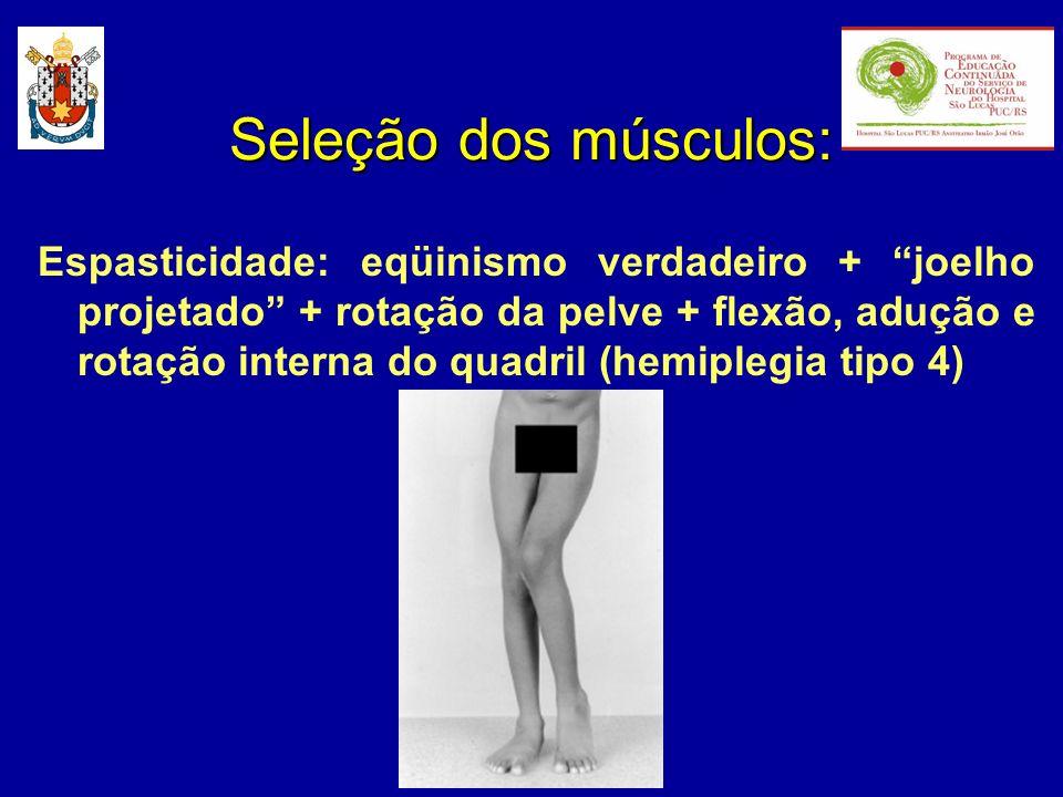 Espasticidade: eqüinismo verdadeiro + joelho projetado + rotação da pelve + flexão, adução e rotação interna do quadril (hemiplegia tipo 4) Seleção do