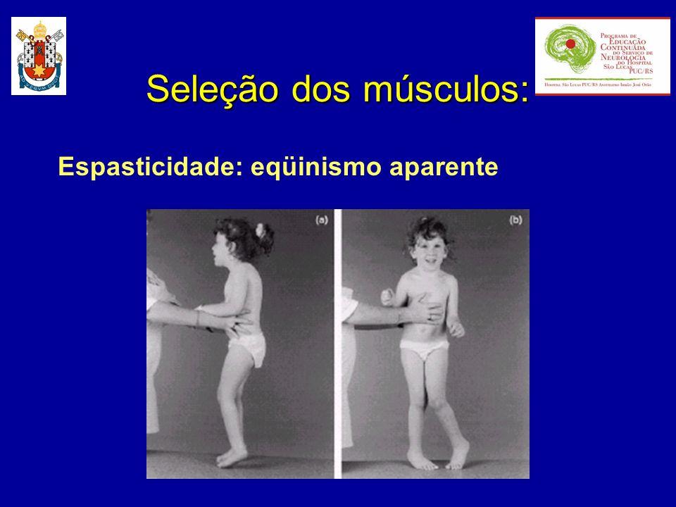 Espasticidade: eqüinismo aparente Seleção dos músculos: