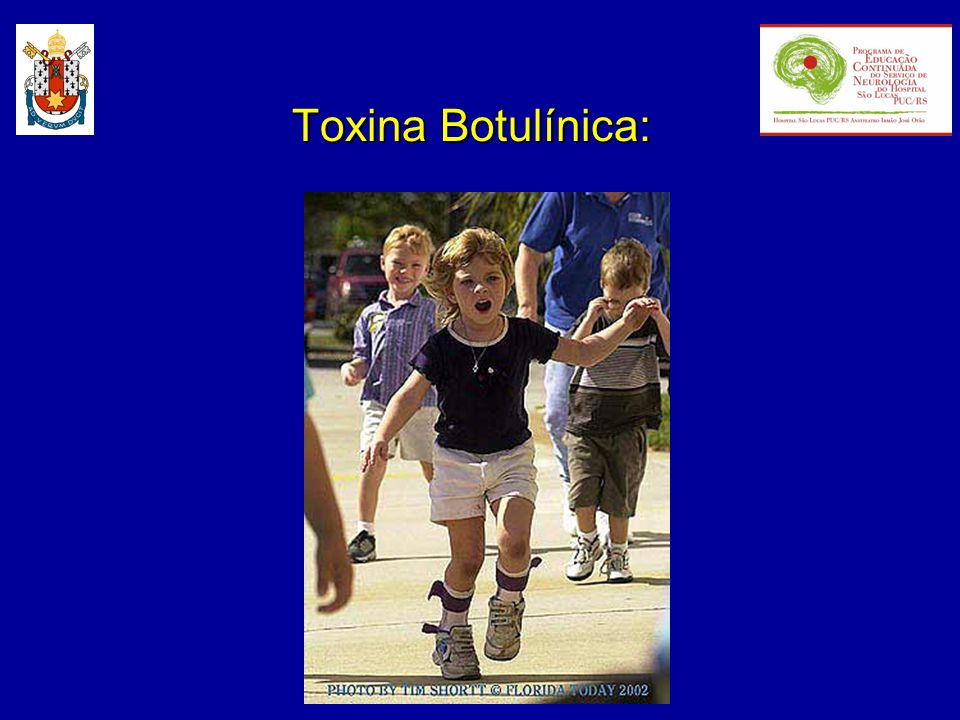 Toxina Botulínica: