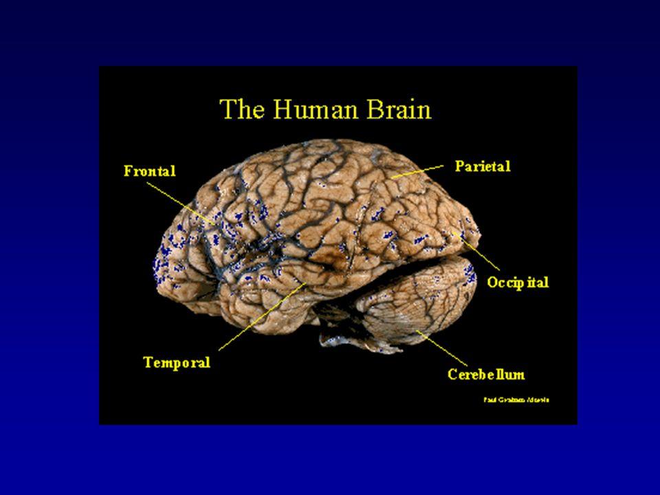 Agnosia Incapacidade do indivíduo de reconhecer o objeto ou som, apesar da visão e audição estarem intactas Agnosia visual: o paciente vê o objeto mas é incapaz de dizer o que ele é
