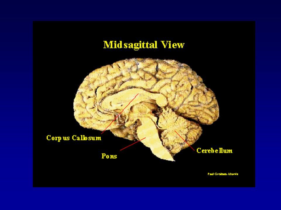 A produção de palavras ativa o córtex frontal opercular (A), articulação das palavras ativa o córtex motor (B), ouvir palavras ativa o córtex auditivo no giro temporal superior (C), e ler palavras ativa o córtex visual têmporo occiptal (D).