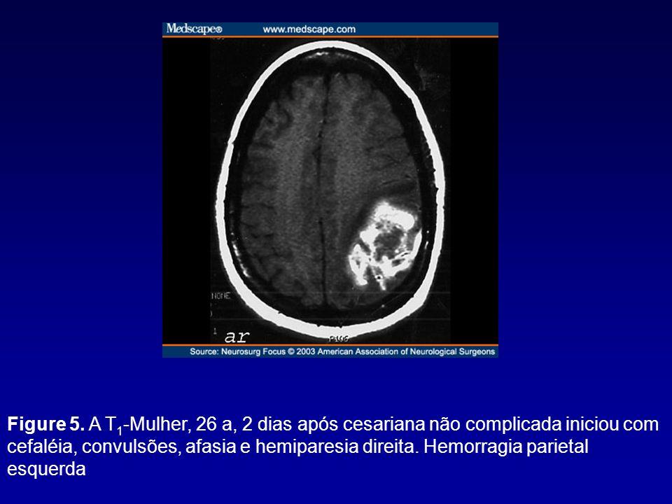 Figure 5. A T 1 -Mulher, 26 a, 2 dias após cesariana não complicada iniciou com cefaléia, convulsões, afasia e hemiparesia direita. Hemorragia parieta