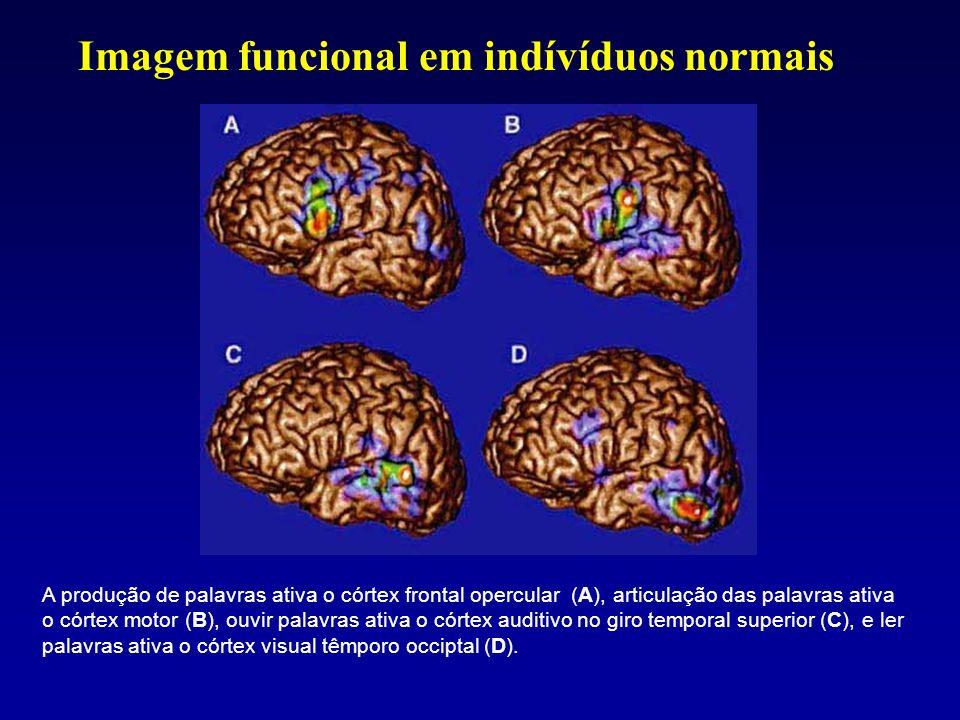 A produção de palavras ativa o córtex frontal opercular (A), articulação das palavras ativa o córtex motor (B), ouvir palavras ativa o córtex auditivo