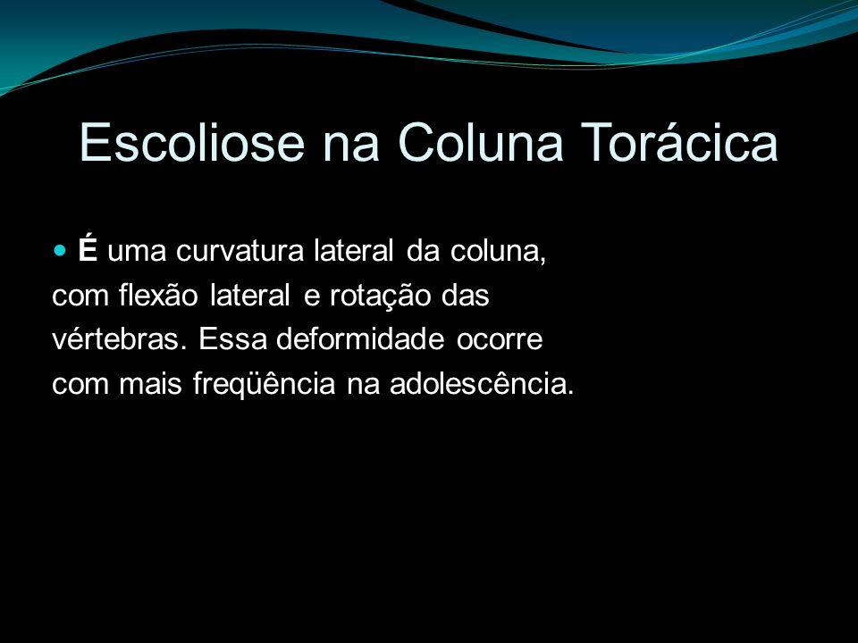 Escoliose na Coluna Torácica É uma curvatura lateral da coluna, com flexão lateral e rotação das vértebras. Essa deformidade ocorre com mais freqüênci