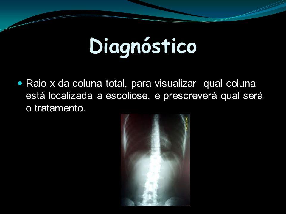 Diagnóstico Raio x da coluna total, para visualizar qual coluna está localizada a escoliose, e prescreverá qual será o tratamento.