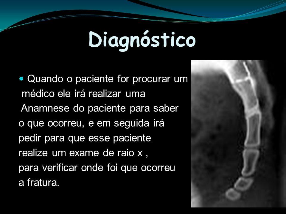 Diagnóstico Quando o paciente for procurar um médico ele irá realizar uma Anamnese do paciente para saber o que ocorreu, e em seguida irá pedir para q