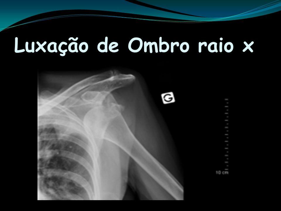Luxação de Ombro raio x