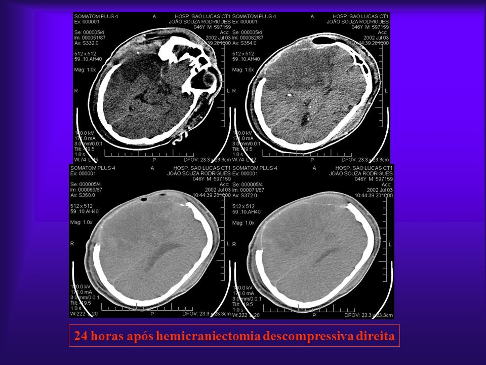 24 horas após hemicraniectomia descompressiva direita