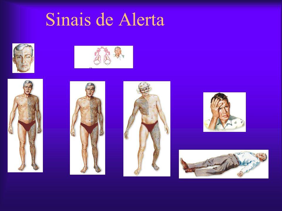 AVC lacunar – pequenas artérias