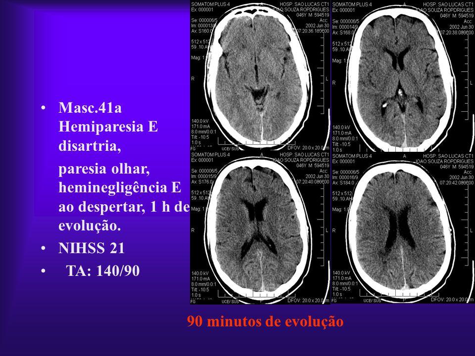 90 minutos de evolução Masc.41a Hemiparesia E disartria, paresia olhar, heminegligência E ao despertar, 1 h de evolução. NIHSS 21 TA: 140/90