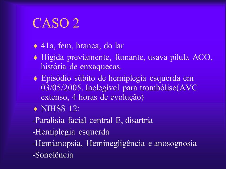 CASO 2 41a, fem, branca, do lar Hígida previamente, fumante, usava pílula ACO, história de enxaquecas. Episódio súbito de hemiplegia esquerda em 03/05