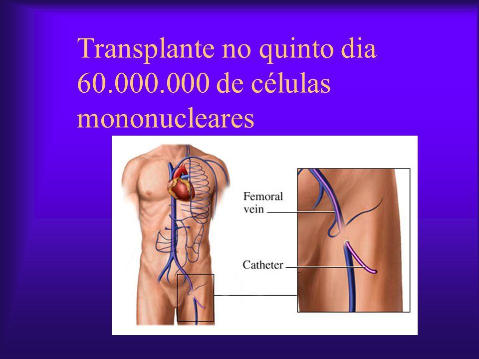 Transplante no quinto dia 60.000.000 de células mononucleares