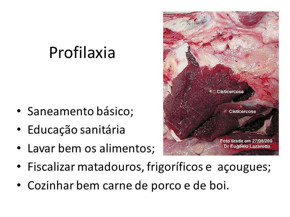 Ascaridíase (lombriga) Dióicos; 20cm a 30cm; Os adultos vivem no intestino delgado; Causa a ascaridíase; Traz perturbações na fase adulta e migratória e pode causar obstrução intestinal.