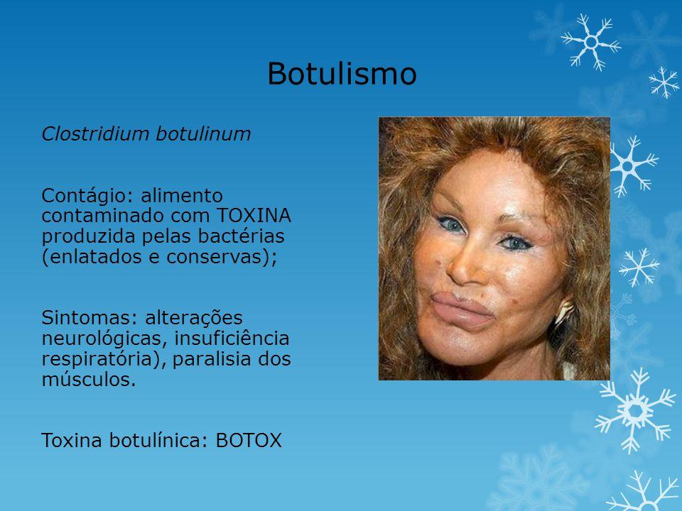 Botulismo Clostridium botulinum Contágio: alimento contaminado com TOXINA produzida pelas bactérias (enlatados e conservas); Sintomas: alterações neur