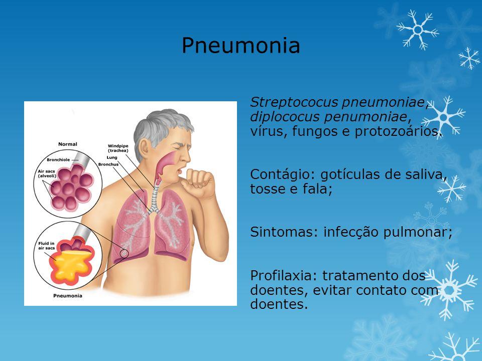Pneumonia Streptococus pneumoniae, diplococus penumoniae, vírus, fungos e protozoários. Contágio: gotículas de saliva, tosse e fala; Sintomas: infecçã