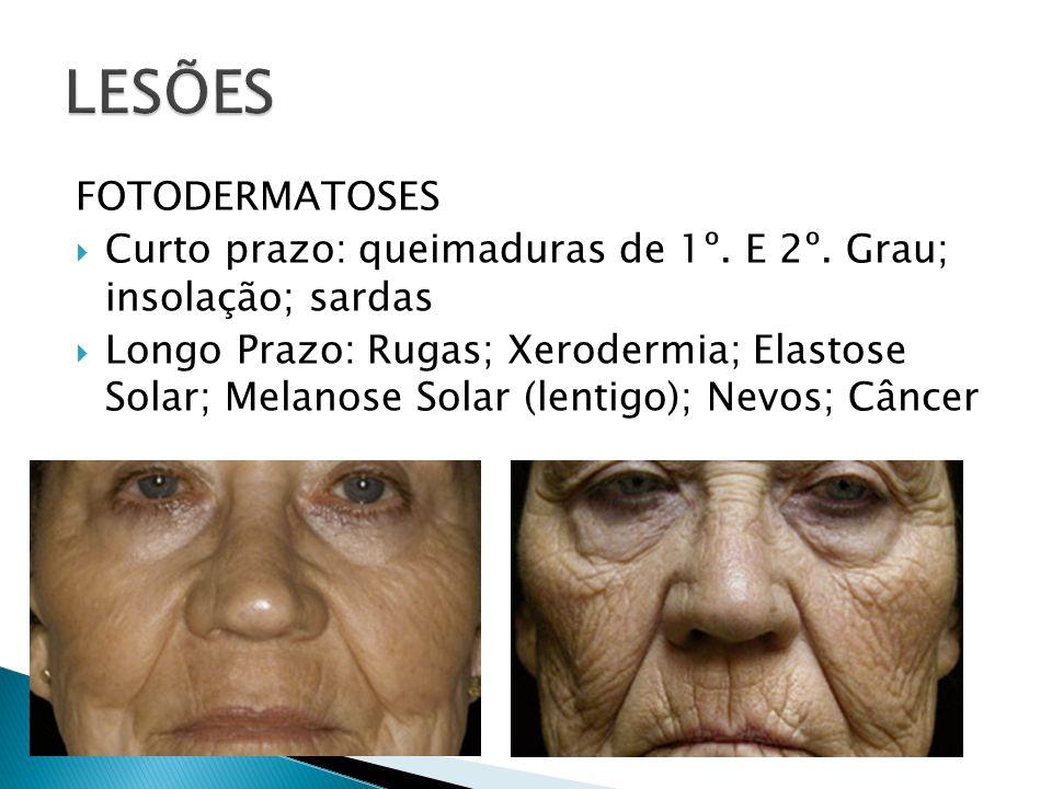 FOTODERMATOSES Curto prazo: queimaduras de 1º. E 2º. Grau; insolação; sardas Longo Prazo: Rugas; Xerodermia; Elastose Solar; Melanose Solar (lentigo);