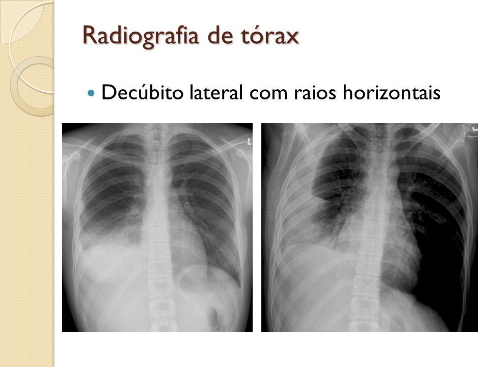 Radiografia de tórax Decúbito lateral com raios horizontais