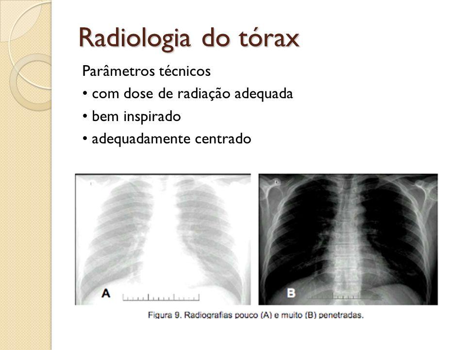 Radiologia do tórax Parâmetros técnicos com dose de radiação adequada bem inspirado adequadamente centrado