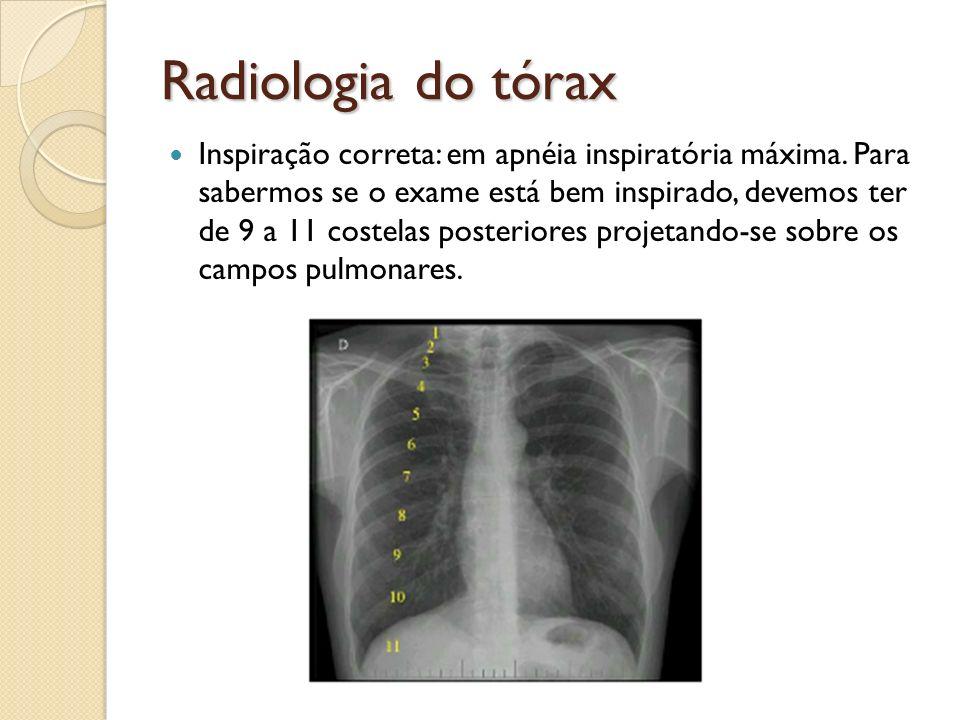 Radiologia do tórax Inspiração correta: em apnéia inspiratória máxima. Para sabermos se o exame está bem inspirado, devemos ter de 9 a 11 costelas pos