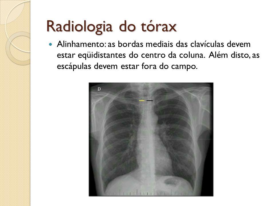 Radiologia do tórax Alinhamento: as bordas mediais das clavículas devem estar eqüidistantes do centro da coluna. Além disto, as escápulas devem estar
