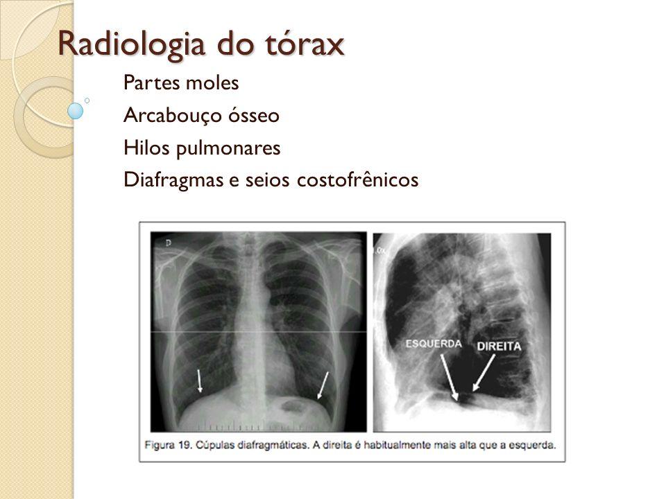 Radiologia do tórax Partes moles Arcabouço ósseo Hilos pulmonares Diafragmas e seios costofrênicos