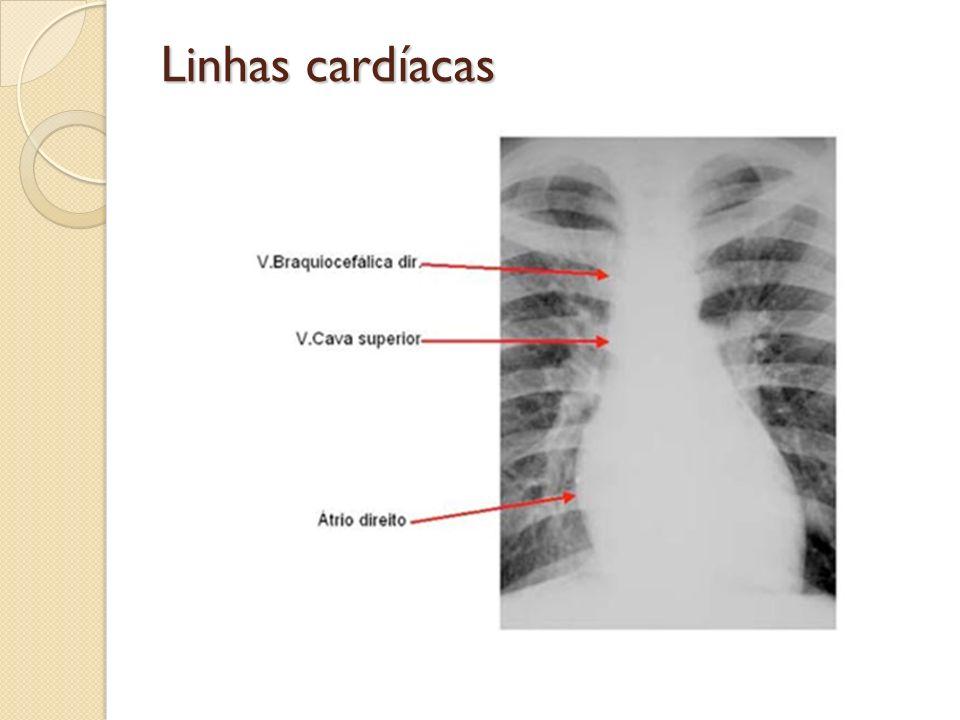 Linhas cardíacas