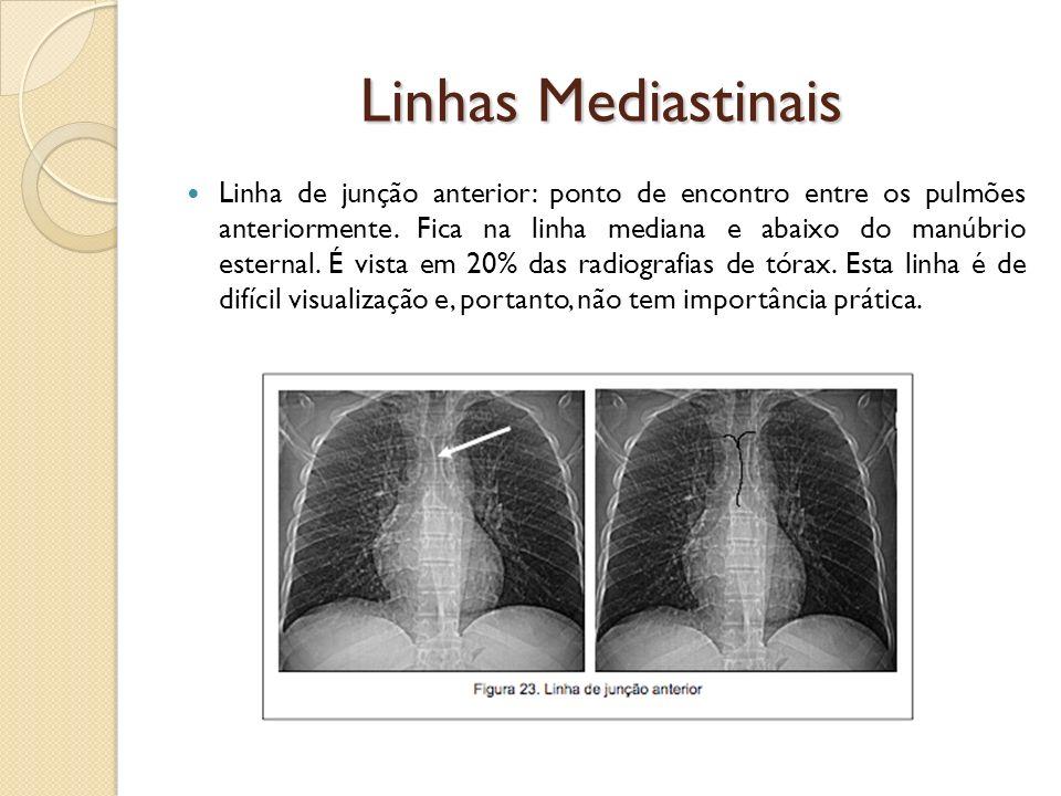 Linhas Mediastinais Linha de junção anterior: ponto de encontro entre os pulmões anteriormente. Fica na linha mediana e abaixo do manúbrio esternal. É