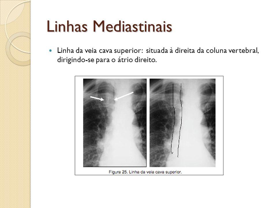 Linhas Mediastinais Linha da veia cava superior: situada à direita da coluna vertebral, dirigindo-se para o átrio direito.