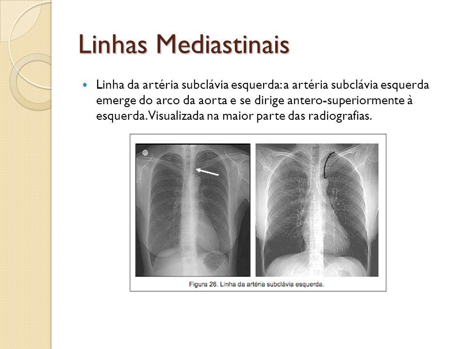 Linhas Mediastinais Linha da artéria subclávia esquerda: a artéria subclávia esquerda emerge do arco da aorta e se dirige antero-superiormente à esque