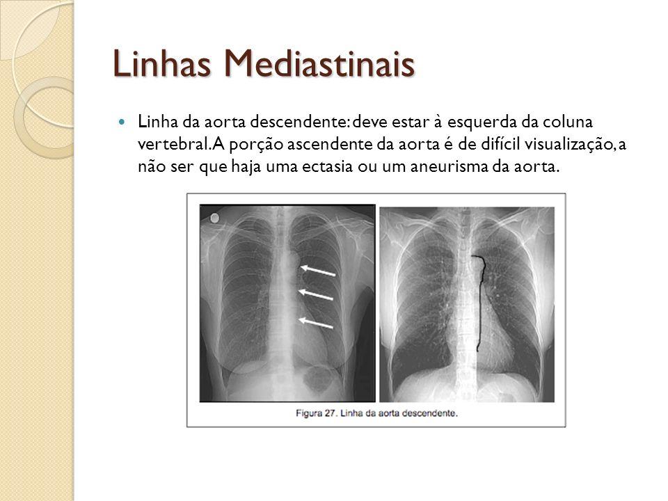 Linhas Mediastinais Linha da aorta descendente: deve estar à esquerda da coluna vertebral. A porção ascendente da aorta é de difícil visualização, a n