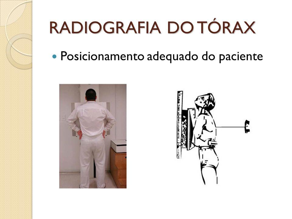 RADIOGRAFIA DO TÓRAX Posicionamento adequado do paciente