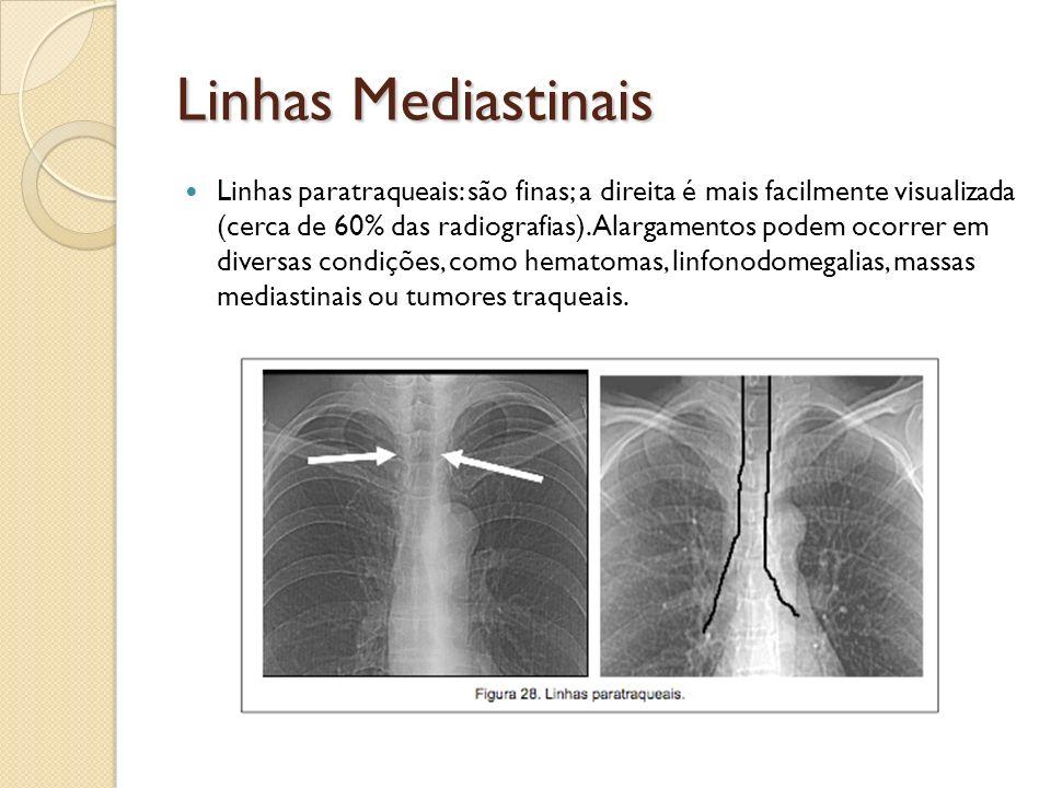 Linhas Mediastinais Linhas paratraqueais: são finas; a direita é mais facilmente visualizada (cerca de 60% das radiografias). Alargamentos podem ocorr