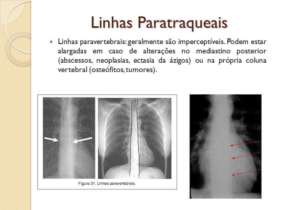 Linhas Paratraqueais Linhas paravertebrais: geralmente são imperceptíveis. Podem estar alargadas em caso de alterações no mediastino posterior (absces