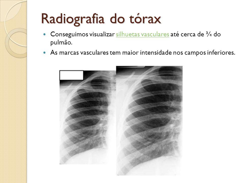 Radiografia do tórax Conseguimos visualizar silhuetas vasculares até cerca de ¾ do pulmão.silhuetas vasculares As marcas vasculares tem maior intensid