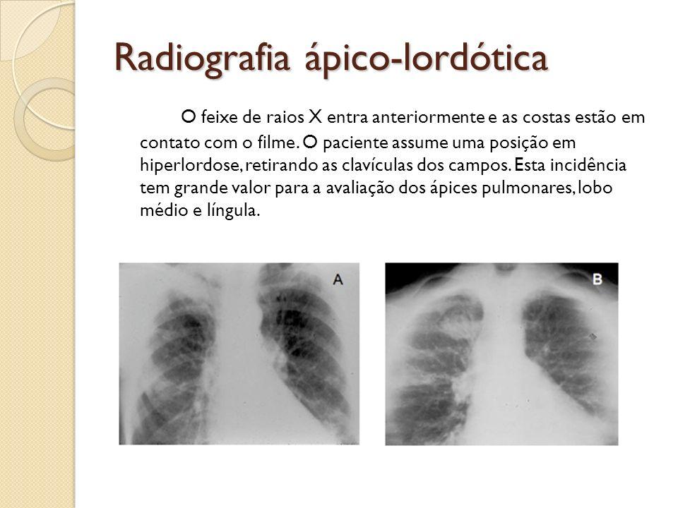Radiografia ápico-lordótica O feixe de raios X entra anteriormente e as costas estão em contato com o filme. O paciente assume uma posição em hiperlor