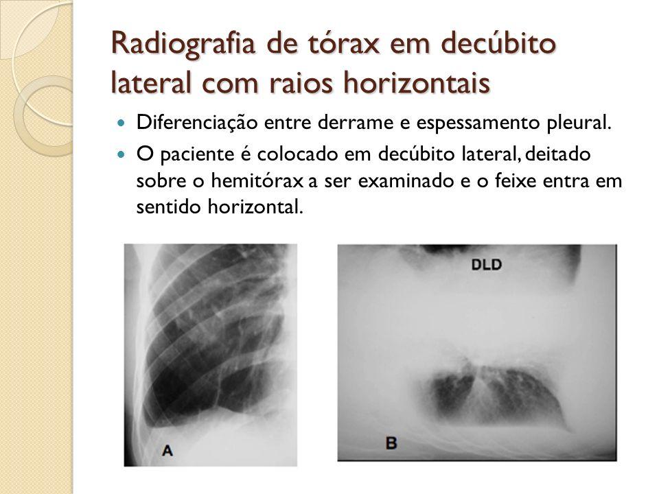 Radiografia de tórax em decúbito lateral com raios horizontais Diferenciação entre derrame e espessamento pleural. O paciente é colocado em decúbito l