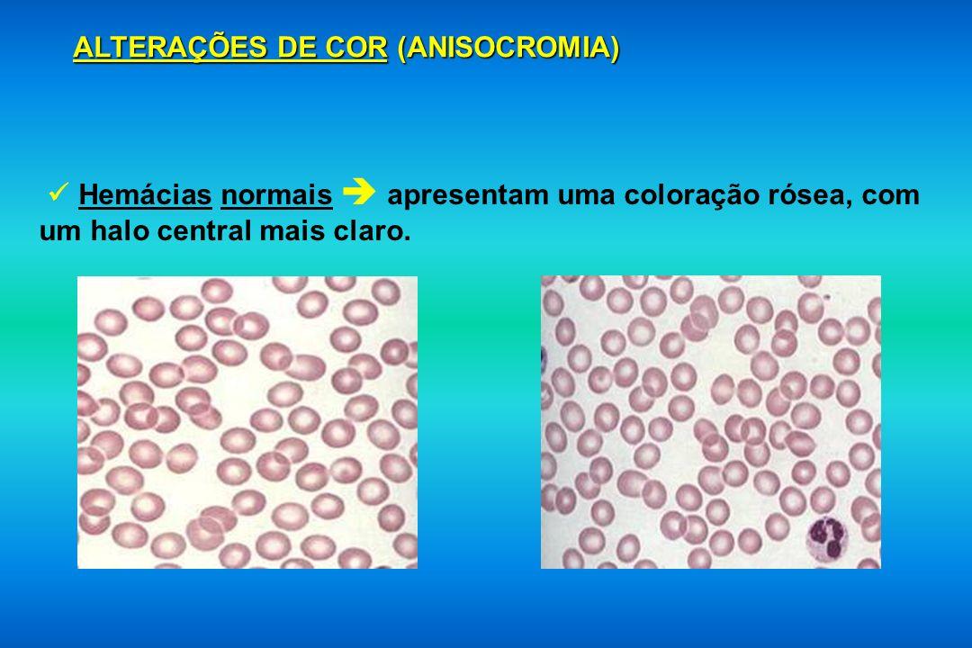 ALTERAÇÕES DE COR (ANISOCROMIA) Hemácias normais apresentam uma coloração rósea, com um halo central mais claro.