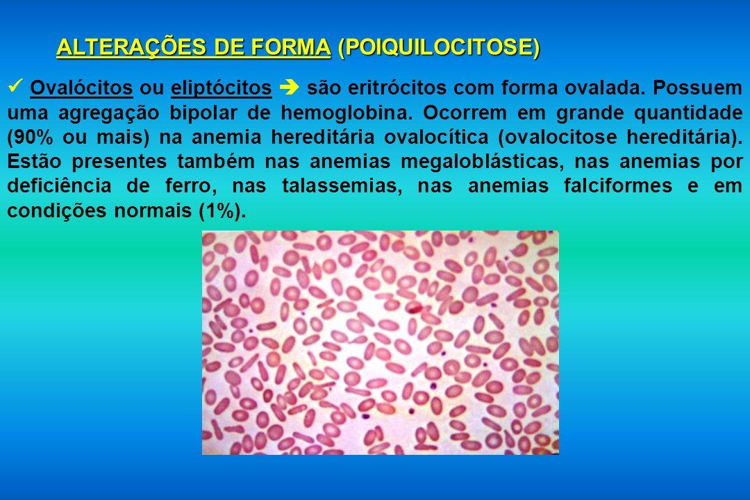 ALTERAÇÕES DE FORMA (POIQUILOCITOSE) Ovalócitos ou eliptócitos são eritrócitos com forma ovalada. Possuem uma agregação bipolar de hemoglobina. Ocorre