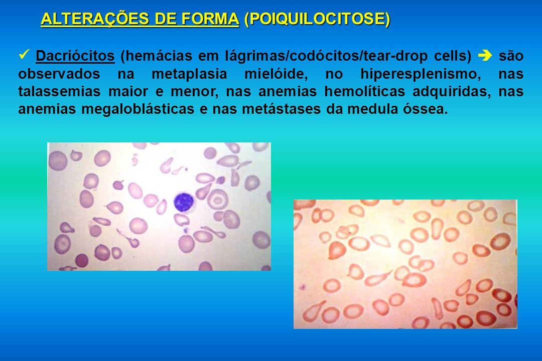 ALTERAÇÕES DE FORMA (POIQUILOCITOSE) Dacriócitos (hemácias em lágrimas/codócitos/tear-drop cells) são observados na metaplasia mielóide, no hiperesple