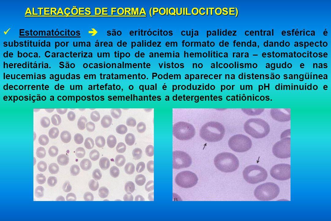 ALTERAÇÕES DE FORMA (POIQUILOCITOSE) Estomatócitos são eritrócitos cuja palidez central esférica é substituída por uma área de palidez em formato de f