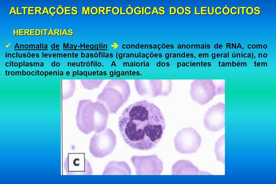 ALTERAÇÕES MORFOLÓGICAS DOS LEUCÓCITOS HEREDITÁRIAS Anomalia de May-Hegglin condensações anormais de RNA, como inclusões levemente basófilas (granulaç