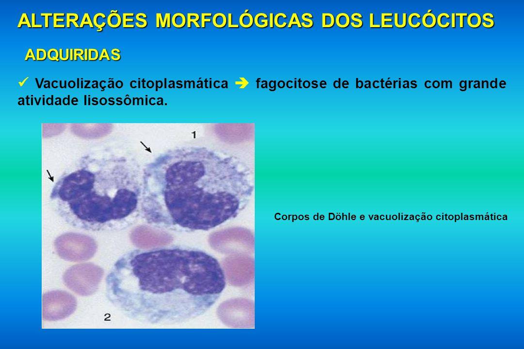 ALTERAÇÕES MORFOLÓGICAS DOS LEUCÓCITOS ADQUIRIDAS Vacuolização citoplasmática fagocitose de bactérias com grande atividade lisossômica. Corpos de Döhl