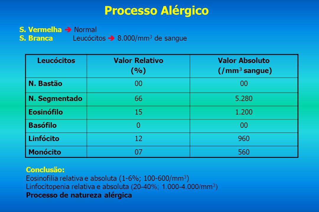 Processo Alérgico S. Vermelha Normal S. Branca Leucócitos 8.000/mm 3 de sangue LeucócitosValor Relativo (%) Valor Absoluto (/mm 3 sangue) N. Bastão00