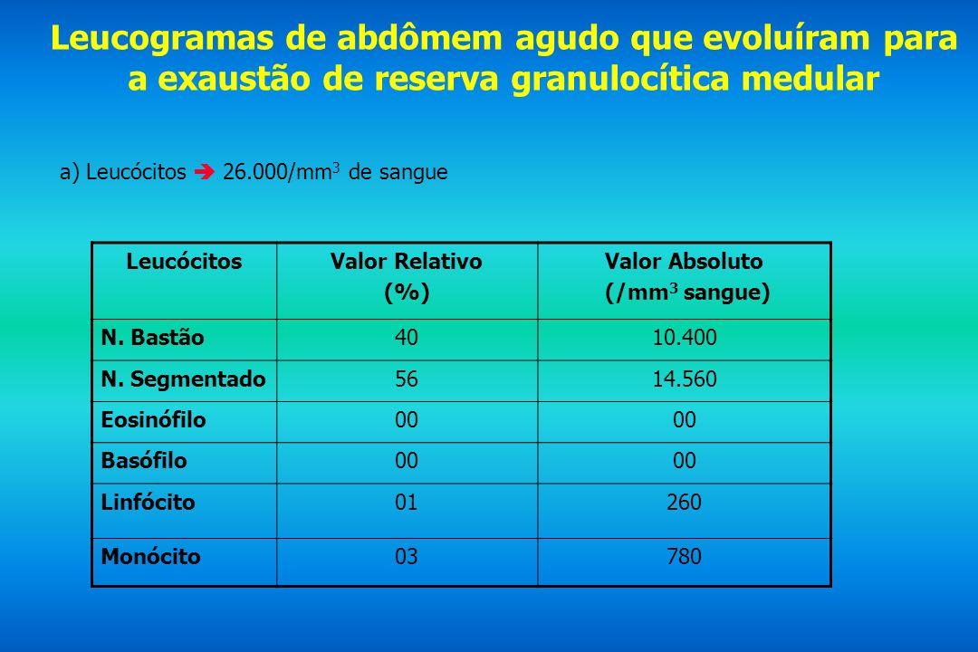 Leucogramas de abdômem agudo que evoluíram para a exaustão de reserva granulocítica medular a) Leucócitos 26.000/mm 3 de sangue LeucócitosValor Relati
