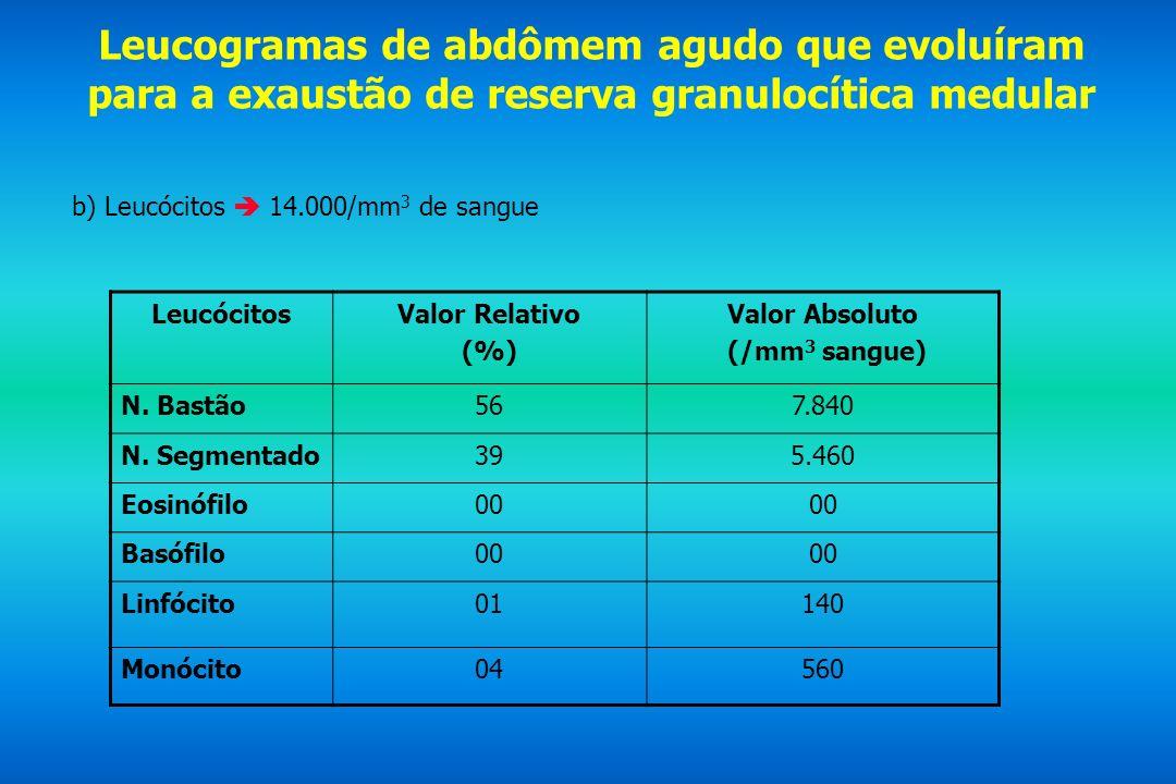 Leucogramas de abdômem agudo que evoluíram para a exaustão de reserva granulocítica medular b) Leucócitos 14.000/mm 3 de sangue LeucócitosValor Relati