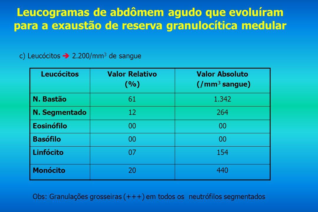 Leucogramas de abdômem agudo que evoluíram para a exaustão de reserva granulocítica medular c) Leucócitos 2.200/mm 3 de sangue LeucócitosValor Relativ