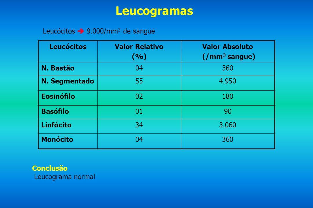 Leucogramas Leucócitos 9.000/mm 3 de sangue LeucócitosValor Relativo (%) Valor Absoluto (/mm 3 sangue) N. Bastão04360 N. Segmentado554.950 Eosinófilo0
